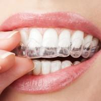 Fallbeispiele der Zahnarztpraxis Müller