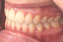 Fachgerechte kieferorthopädische Zahnkorrektur in Berlin Friedrichsfelde