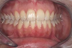 Kieferorthopädische Zahnkorrektur der Praxis Müller